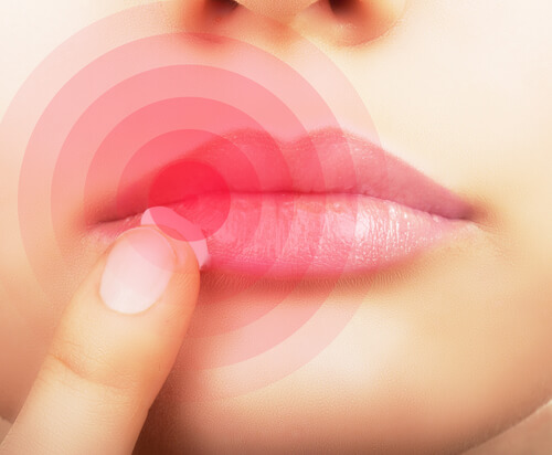 8 Ways to Get Rid of Canker Sores