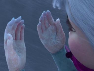 image of hands with frostbite from movie Frozen