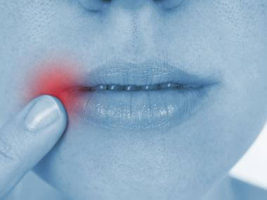 How to Treat and Prevent Cold Sores