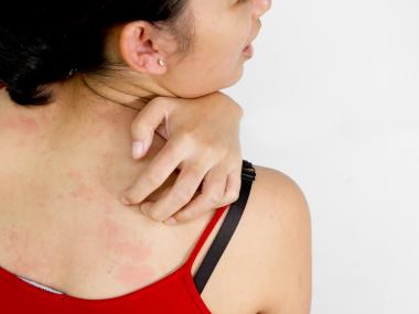 When Should You Worry About a Rash?
