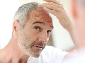 What to Do if Your Hair Is Thinning: Natural Remedies that May Stop Hair Loss