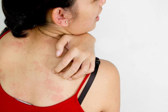 House Call Doctor : 7 Times to Worry About a Rash :: Quick