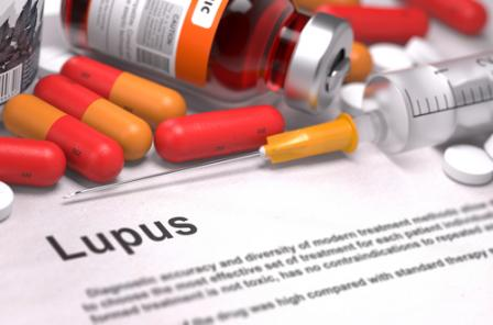 House Call Doctor : What Is Lupus? :: Quick and Dirty Tips